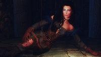 Witcher 3 Female Armors 10.jpg